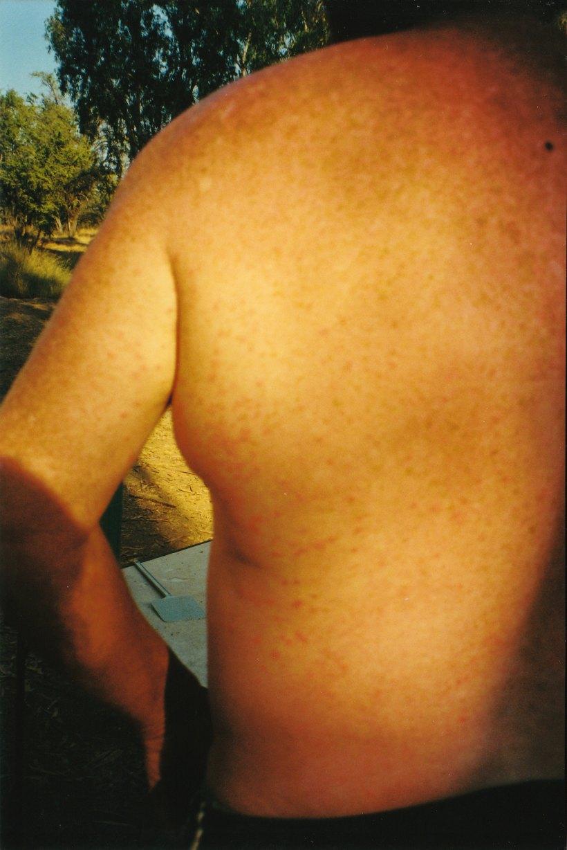 08-11-2000 03 kimberley rash.jpg